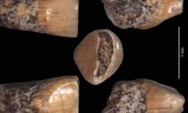 Esposizione del dentino del bambino di Isernia La Pineta dal 14 agosto al 30 settembre