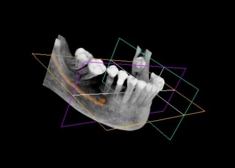 Castel di Sangro, ricostruzioni di mandibole e mascelle al reparto di radiologia