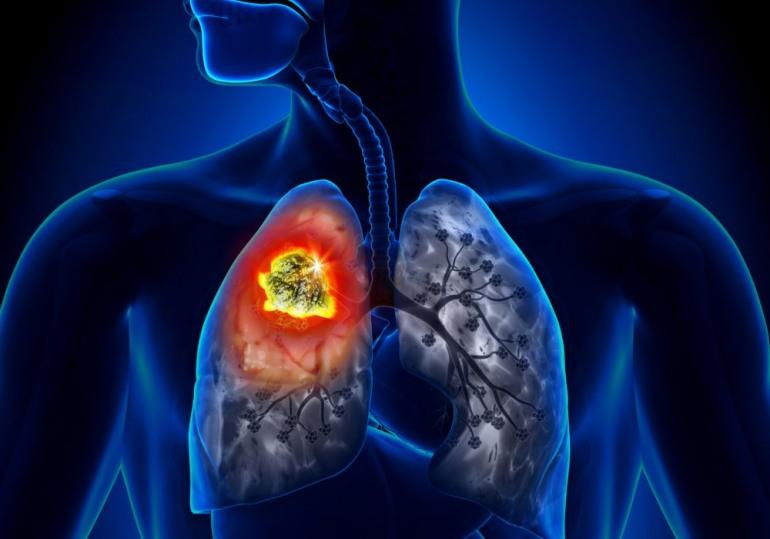 Tumore ai polmoni, tecnica di esame computerizzato raggiunge maggiore accuratezza