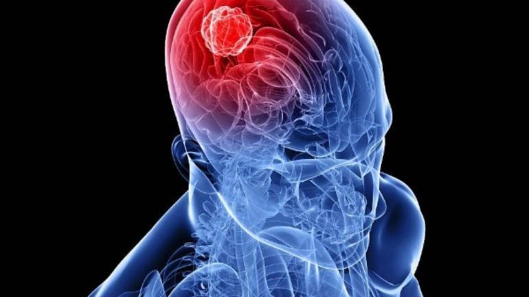 Tumori cerebrali, metodo innovativo aumenta la precisione degli interventi chirurgici